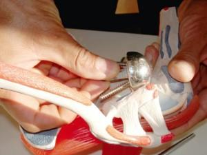 Bei einer reversen (umgekehrten) Prothese, wird die Kugel dahin gesetzt, wo die Pfanne ist und die Pfanne dahin wo die Kugel vorher war am Oberarm. Es entsteht ein Hebelarm, der es dem Deltamuskel ohne die anderen Muskeln (Rotatorenmanschette) ermöglicht das Gelenk hochzuheben. Foto: Susanna Khoury